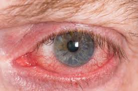 Catching the Red Eye – And Dealing With It!